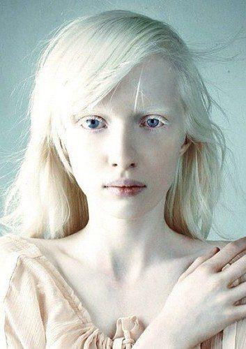 Девочка альбинос с фиолетовым оттенком глаз