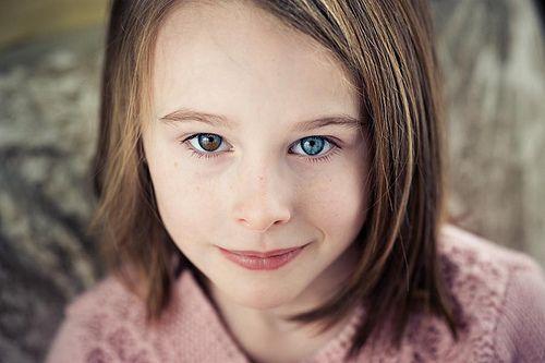Гетерохромия — глаза разного цвета у девочки