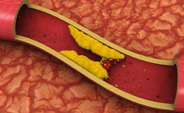 Холестерин. Миф или реальность?