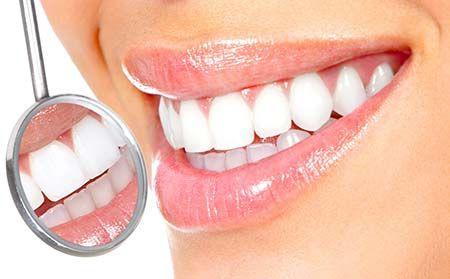 Отбеливание зубов. Как сделать белоснежную улыбку?