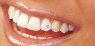 Зубные украшения Skyce (Скайс) — стразы на зубы, сверкающая бриллиантовая улыбка