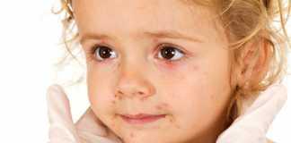 Ребенок аллергик. 5 главных, но простых советов