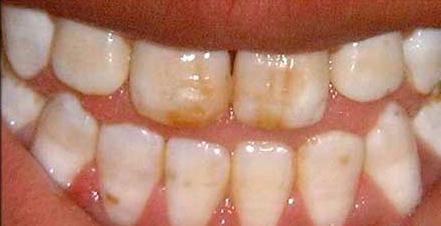 Почему фтор препятствует появлению дырок в зубах?