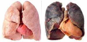 рак курильщика