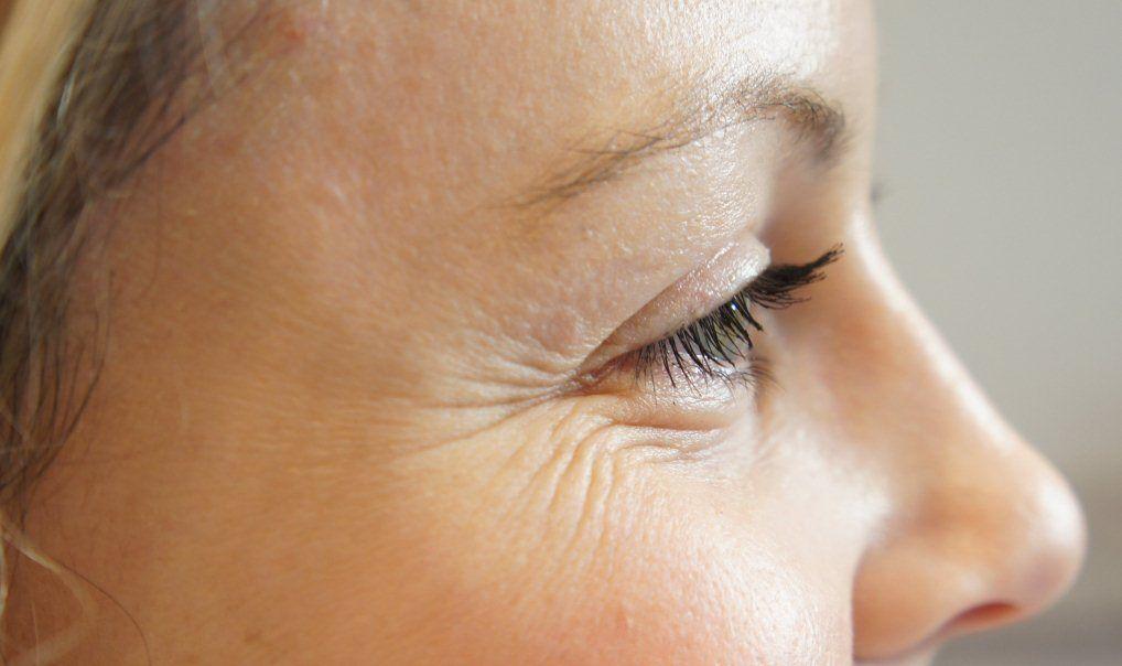 «Гусиные лапки». Мимические морщинки вокруг глаз